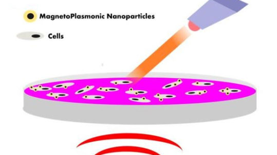 Scheme of combination of nano-magnetic and nano-photothermal therapies using magneto plasmonic nanoparticles